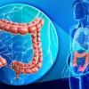 Cancerul colorectal face ravagii