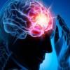 Totul despre accidentul vascular cerebral