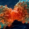 Tratament revoluționar anticancer