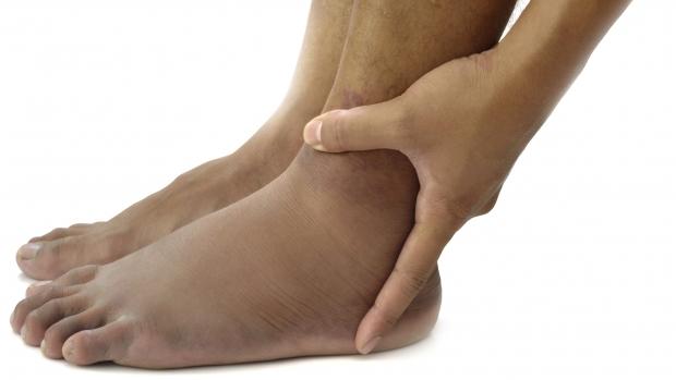umflarea nedureroasă a articulațiilor picioarelor articulațiile picioarelor doare din ce